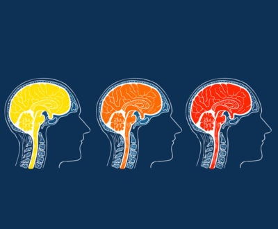 невролозите